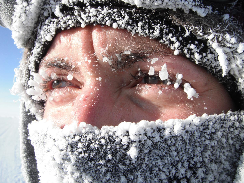 мороз на лице фото