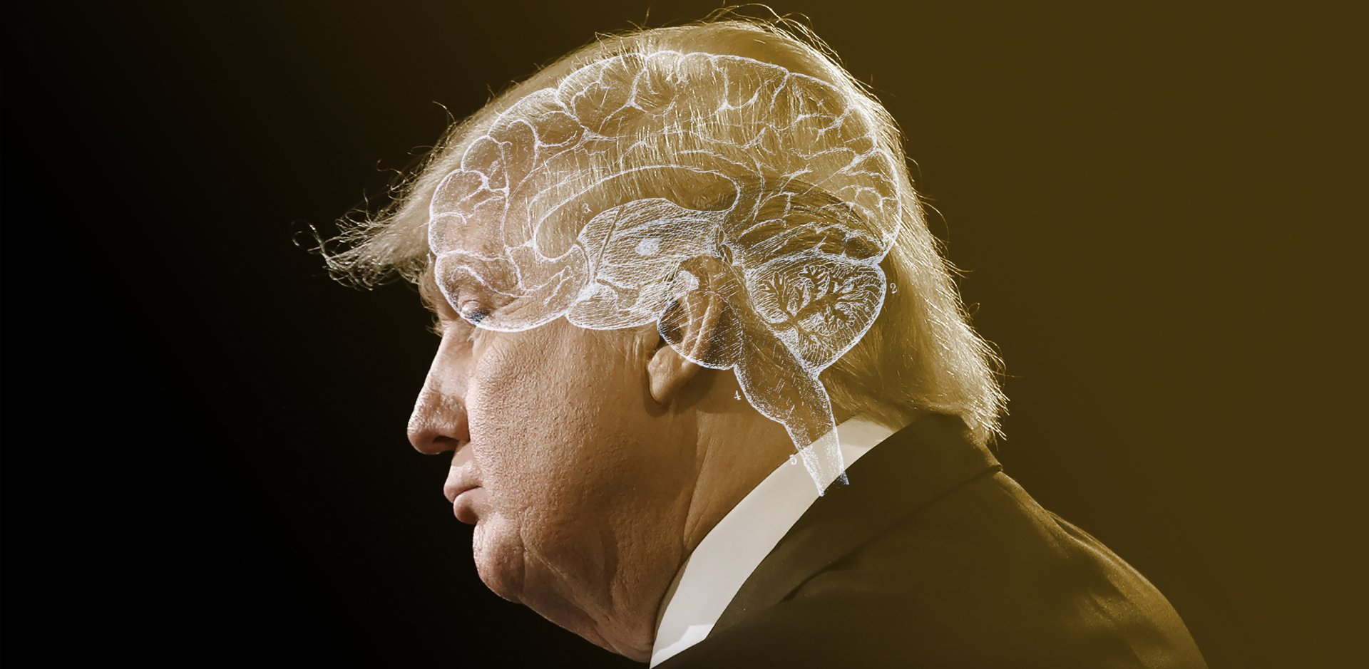 Is There Something Neurologically Wrong With Donald Trump  - The ... e242b3703d4bf