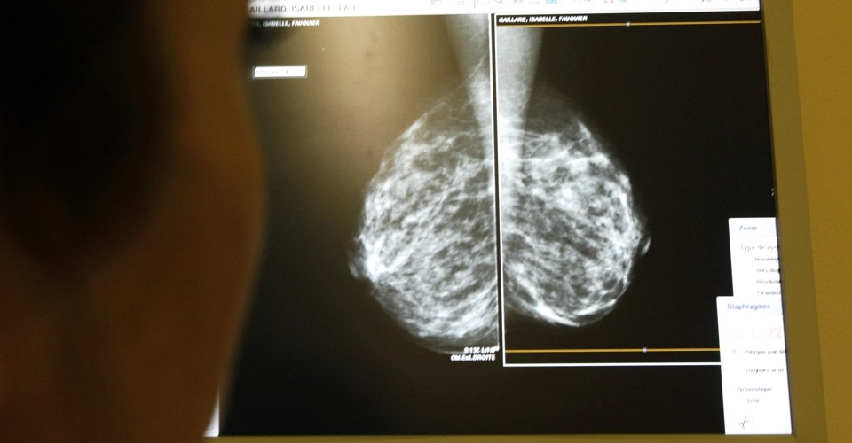 What Dense Breasts Mean for Cancer Risk