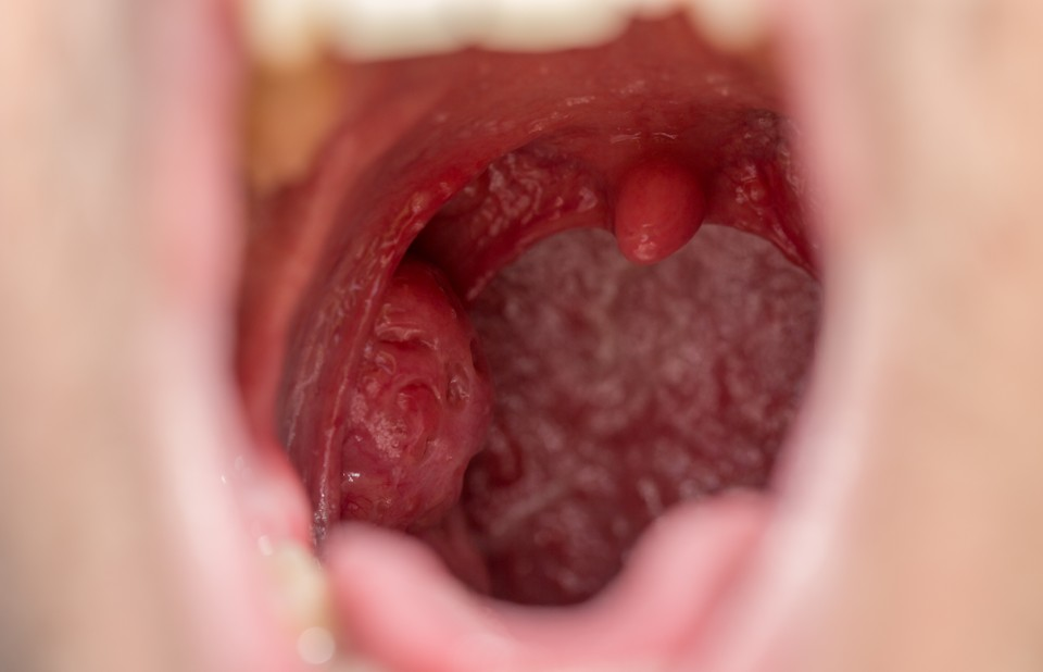 adult cold abscess and tonsils