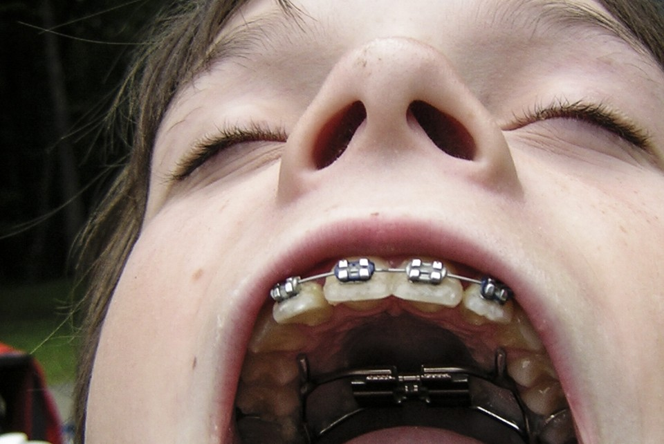 The History of Braces: An Object Lesson - The Atlantic