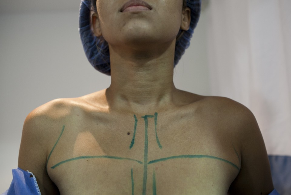 the evolving techniques and technologies of breast