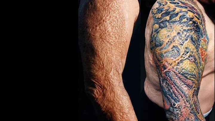 The Firefighter Who Got A Tattoo Over His Skin Graft The Atlantic