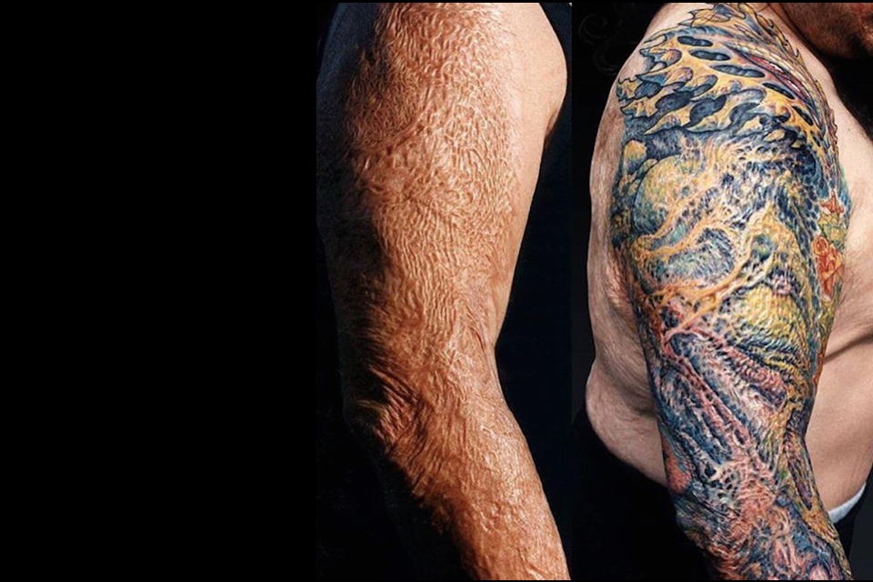 The Firefighter Who Got a Tattoo Over His Skin Graft - The AtlanticCutting Scars Thigh