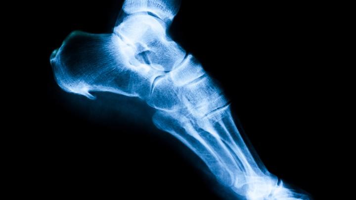 Image result for trump bone spur foot