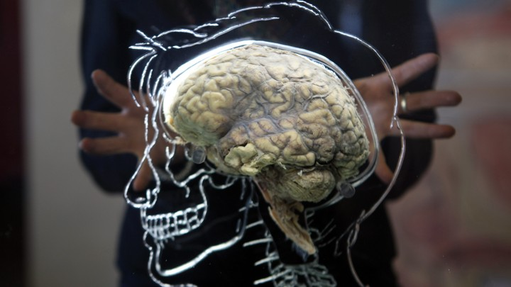 A brain sits inside a glass etching of a human skull.