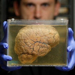 A brain floats in liquid in a container, held by a scientist