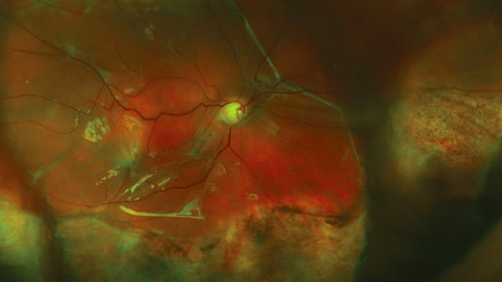 A magnified image of a detached retina