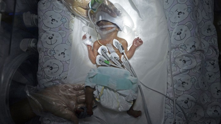 A premature newborn baby connected to medical devices