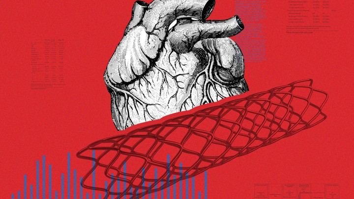 An illustration of a heart and a cardiac stent