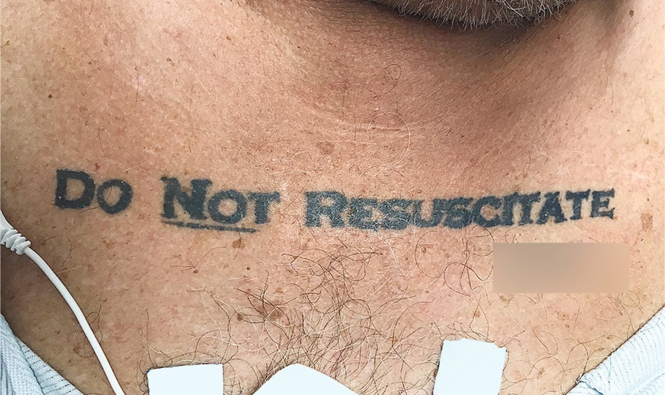 A man with a Do Not Resuscitate tattoo. The signature has been blurred out.