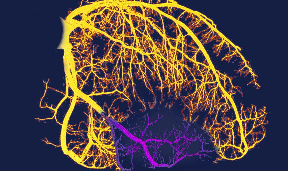 A visualization of the arteries of someone with heart disease