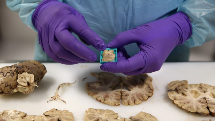 A scientist wearing purple gloves prepares a tissue sample from a dissected human brain.