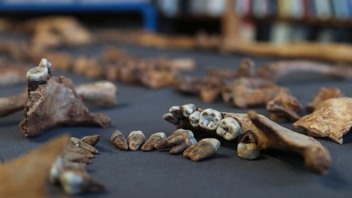 Skeleton teeth on a tablecloth