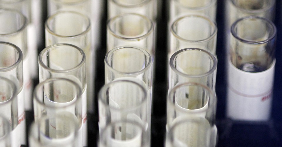 Letters: DNA-Test Surprises - The Atlantic