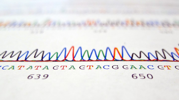 A Man Says His DNA Test Proves He's Black  He's Suing  - The