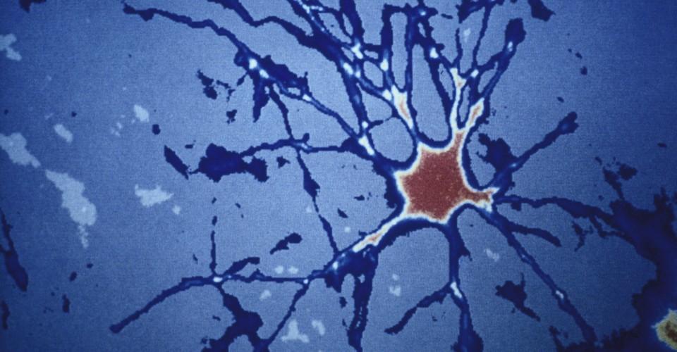 Un nuevo enfoque para la enfermedad de Alzheimer: limpieza de las células retiradas del cerebro