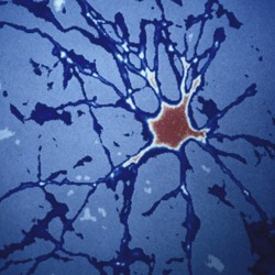 Blue and red human-brain cells