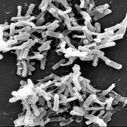 A microscopic shot of the bacteria that cause C. diff