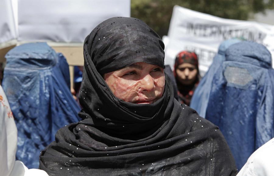 the taliban s war against women women s Although pakistan has in recent years adopted a harder line against taliban militants carrying out attacks 'it's not just women who sometimes regret.