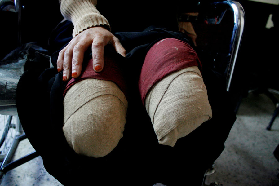 Image result for bruised feet from war