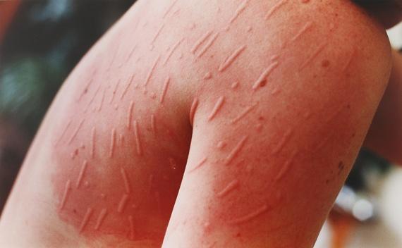 dermatographia flare up