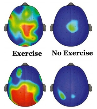 Exercise Is Adhd Medication >> Exercise Is Adhd Medication Duke Academic Resource Center