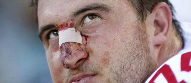 615 football injury bloody face.jpg