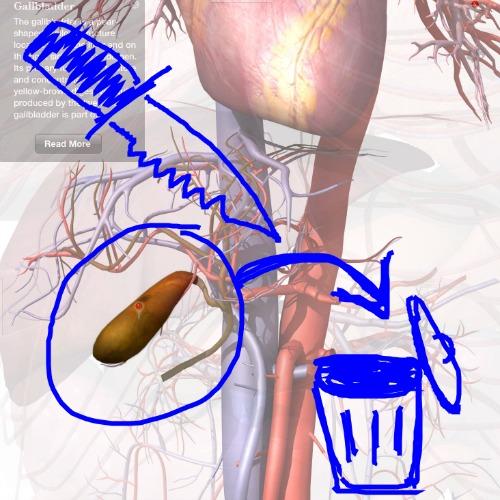 CholecystectomyHamblinJR.jpg