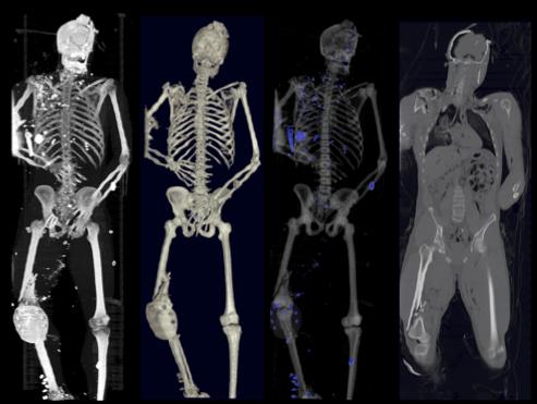 1autopsy-scan.jpg
