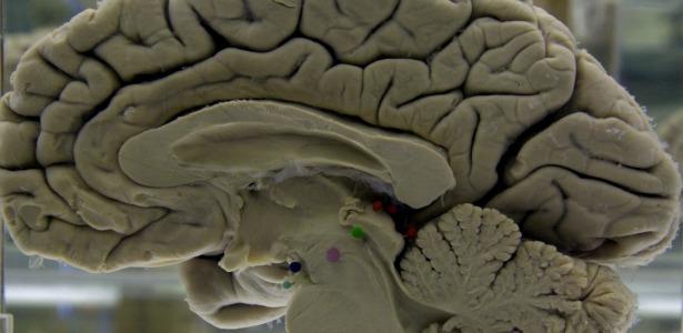 brainpregdnamain.jpg
