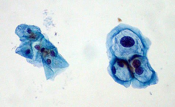 cells-615.jpg