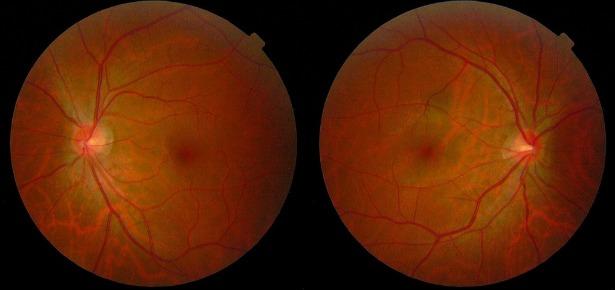 optic nerves 615.jpg