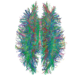 White_Matter_Connections_Obtained_with_MRI_Tractography.jpg