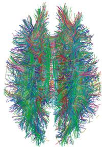 Brains3.jpg