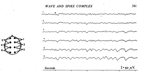 wave and spike.jpg
