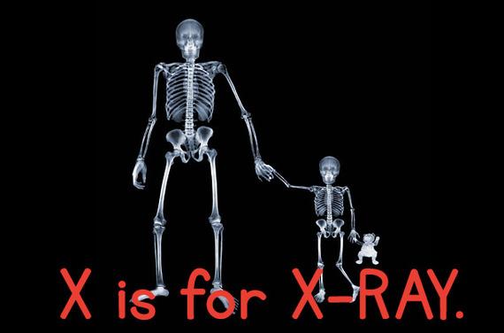 x_xray.jpg