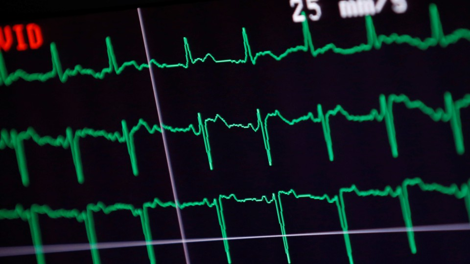 An EKG readout