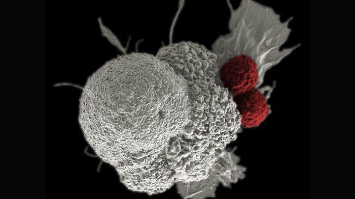 One large white cancer cell being attacked by two smaller red T cells