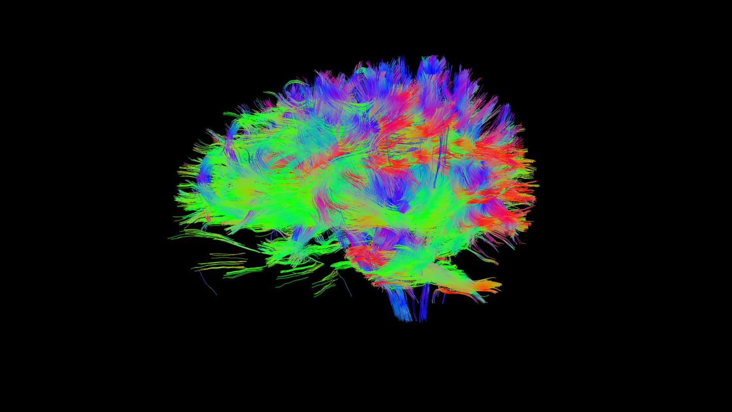 A scan of the author's brain