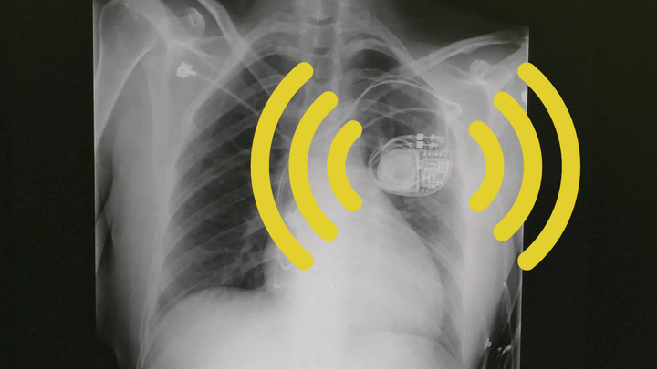 An X-ray of a chest showing a pacemaker overlaid with yellow Wi-Fi-style lines emanating from the pacemaker