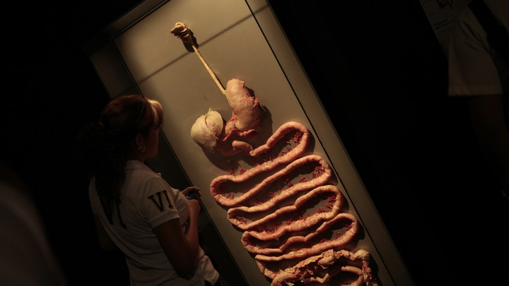A plastinated human digestive system in a display case