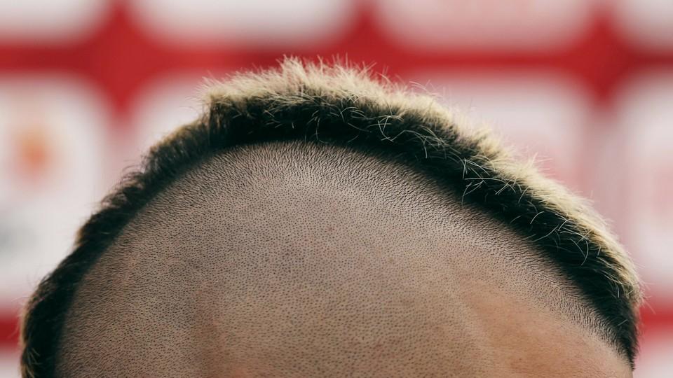 A close-up of a person's short mohawk