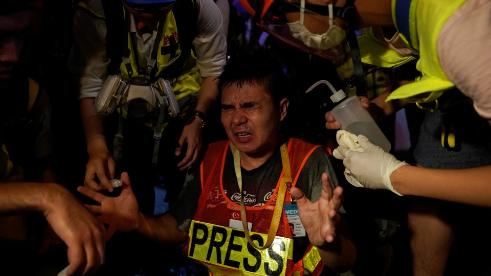 A journalist reacts in pain after being pepper-sprayed by police.
