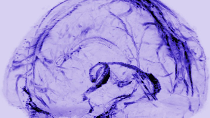 A transparent model of the brain with a network of vessels filled in