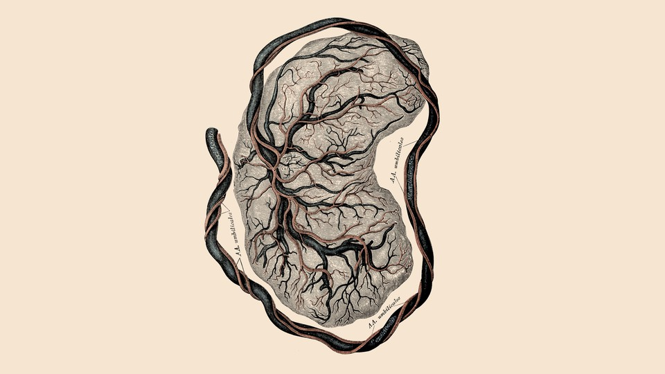 An illustration of a placenta