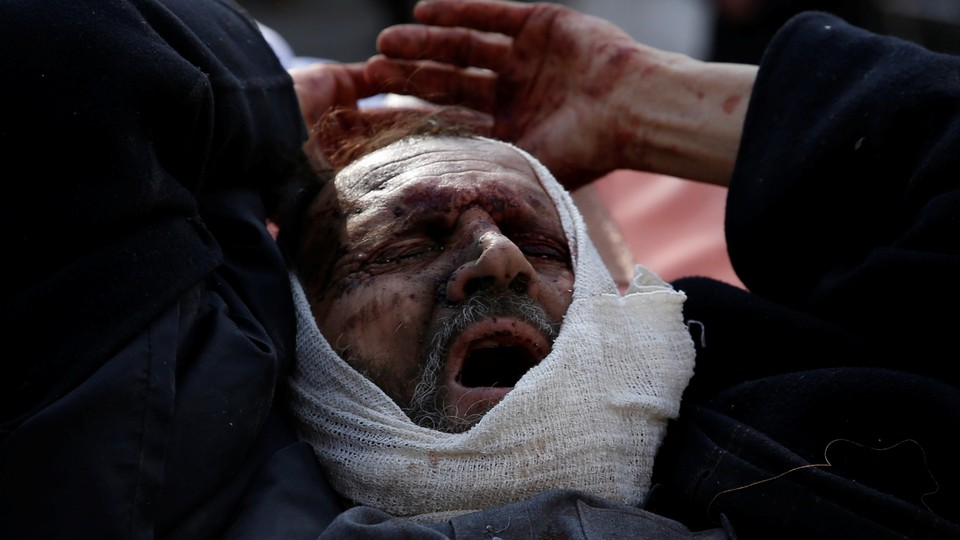 An injured man arrives outside the hospital after a blast in Kabul.