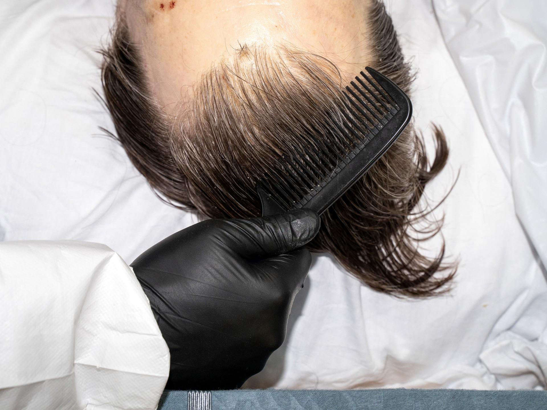 Someone combing the hair of a corpse