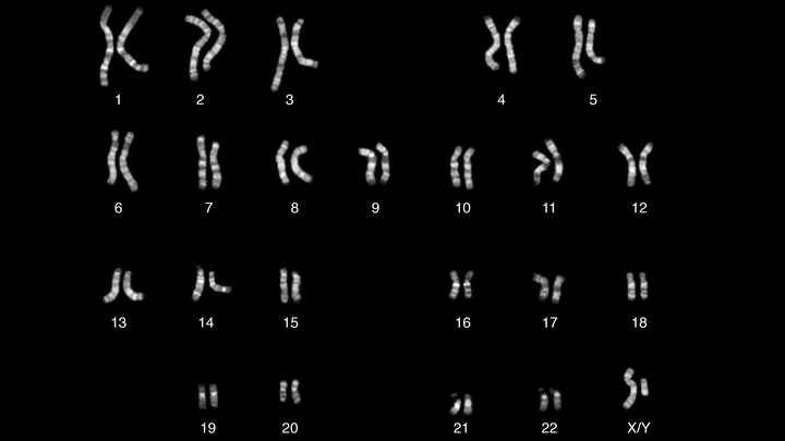 Chromosomes of a male individual, with Y in the lower right corner