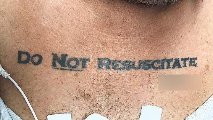 A man with a Do Not Resuscitate tattoo. The signature was blurred out by his medical team.